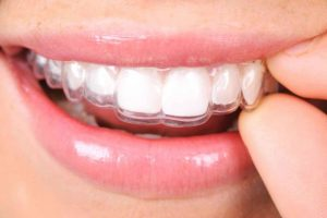 Invisalign mascherine invisibili