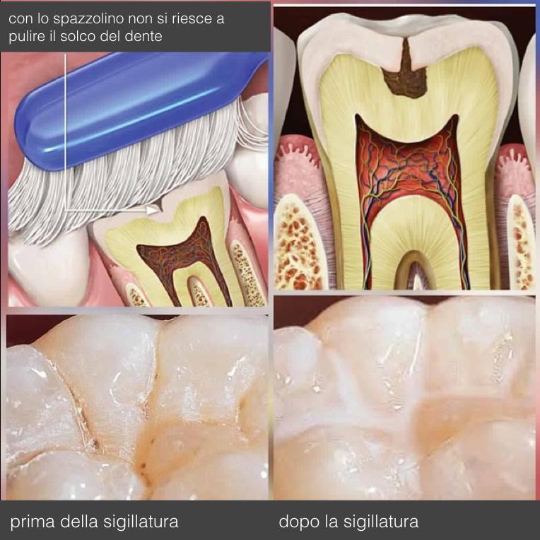 Sigillature dei denti per la prevenzione della carie