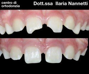 Salva il frammento di dente