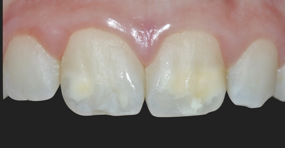 Molar Incisor Hypomineralization