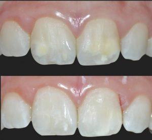 Le macchie bianche sui denti si possono trattare