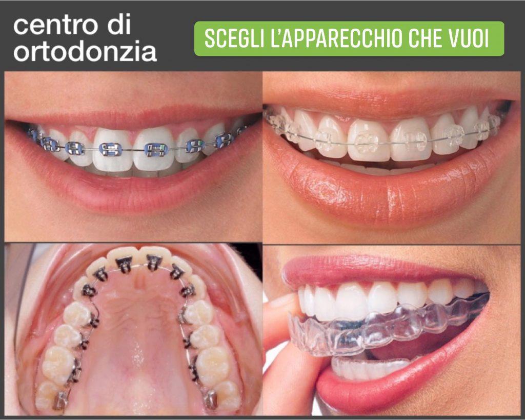 apparecchio dentale a genova