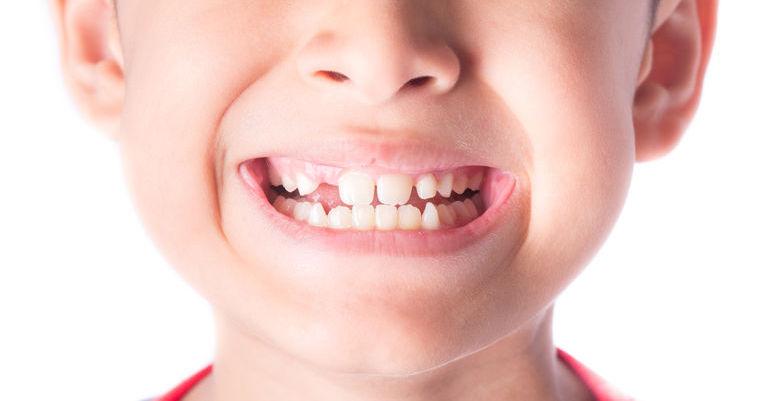 bambino con i denti storti