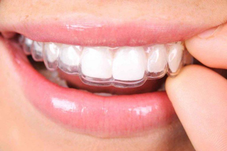 mascherine trasparenti ortodonzia